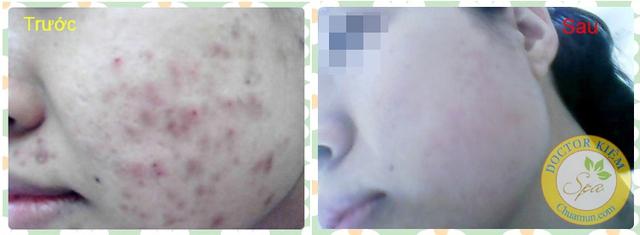 """Hình ảnh trước và sau điều trị tại Doctor Kiệm Spa <span style=""""line-height: 1.6em;"""">của Khách hàng Dương Tuyết Nhung</span>"""