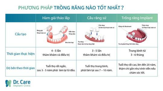 Chọn trồng răng Implant vì chán cảnh làm lại răng sứ - Ảnh 2.