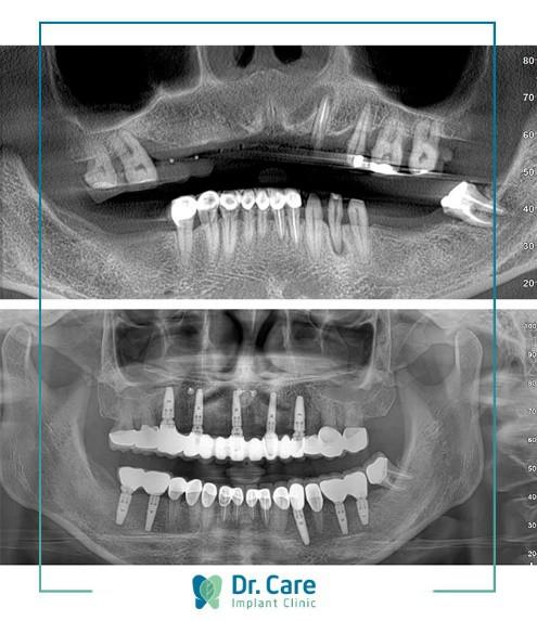Chọn trồng răng Implant vì chán cảnh làm lại răng sứ - Ảnh 4.