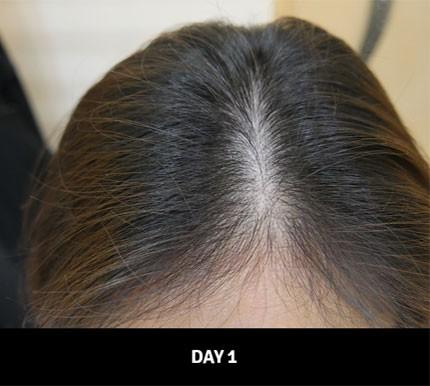 Xóa tan ám ảnh tóc thưa rụng, các nàng tìm thấy bí quyết từ loại dầu gội đến từ Hàn Quốc - Ảnh 6.