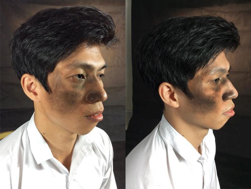 Chàng trai 27 năm sống trong bóng tối với vết chàm bớt tái sinh sau PTTM - Ảnh 1.