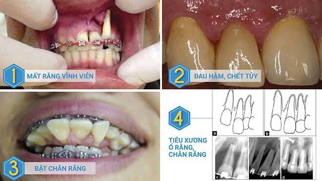 Răng chưa kịp chạy đã bay cả hàm - Thảm họa khi niềng răng giá rẻ - Ảnh 1.