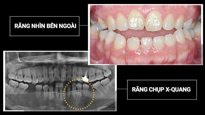 Răng chưa kịp chạy đã bay cả hàm - Thảm họa khi niềng răng giá rẻ - Ảnh 4.