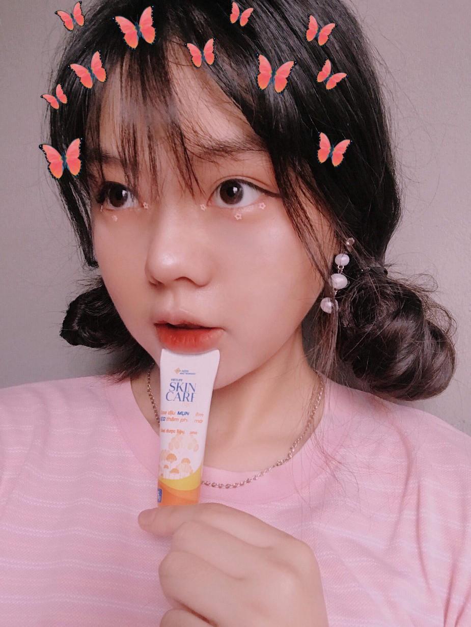 Chia sẻ câu chuyện trị mụn chân thực, vlogger du học sinh Hàn Quốc được nhiều bạn trẻ yêu mến - Ảnh 11.