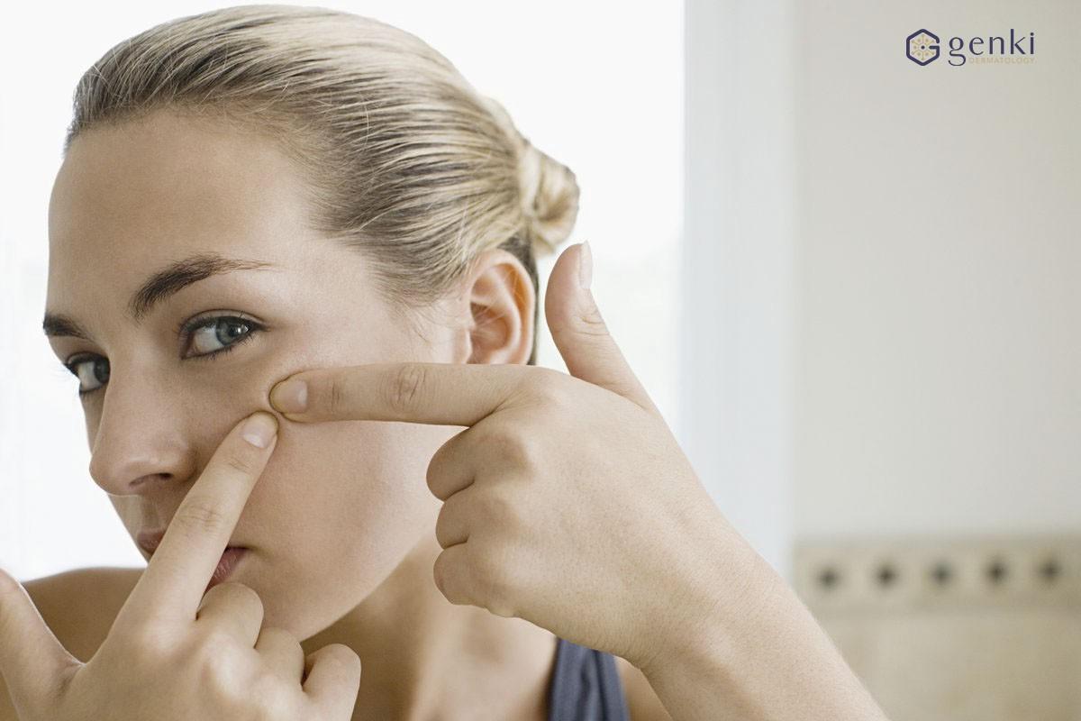 VZN News: Trị sẹo mụn không khó nếu bạn biết chọn đúng cách - Ảnh 1.