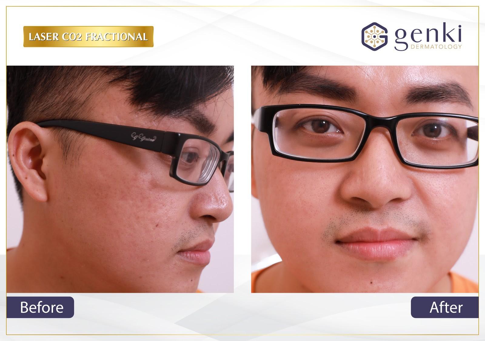 VZN News: Trị sẹo mụn không khó nếu bạn biết chọn đúng cách - Ảnh 4.
