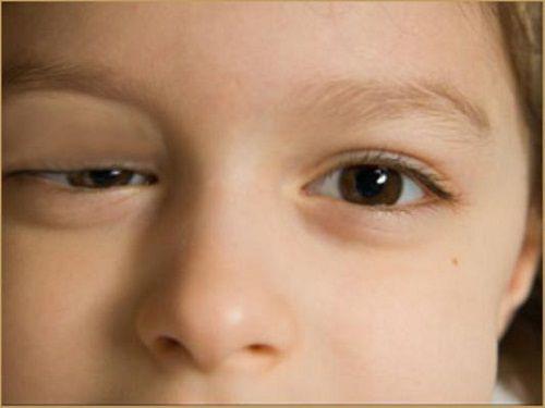 Chữa sụp mí mắt bằng Đông y: Phương pháp an toàn và hiệu quả - Ảnh 1.