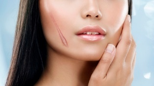 Bí quyết chặn đứng sẹo lồi, sẹo lõm xuất hiện trên làn da phái đẹp - Ảnh 1.
