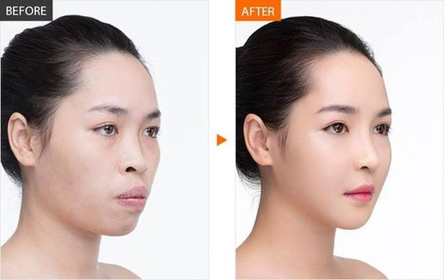 """Hot girl phẫu thuật thẩm mỹ Vũ Thanh Quỳnh khoe nhan sắc xinh đẹp và trẻ trung sau 3 năm """"đập đi xây lại"""" - Ảnh 4."""