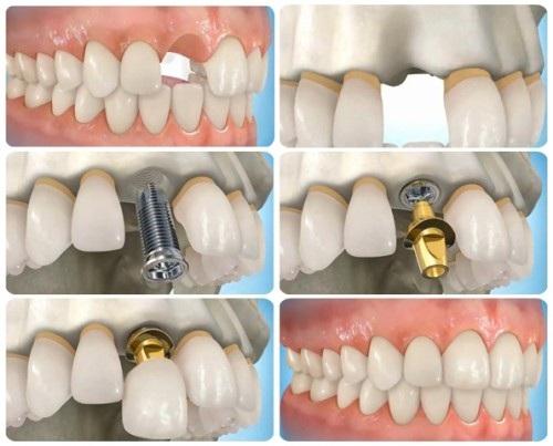 Bạn sẽ không còn lo ngại khi bị mất hẳn răng thật - Ảnh 2.
