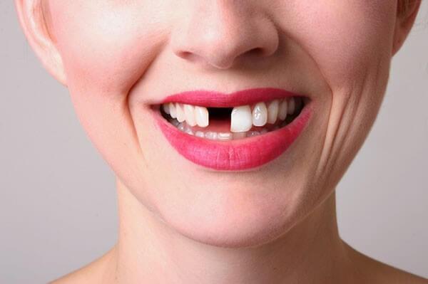 Bị mất răng cửa nên trồng răng loại nào? - Ảnh 1.