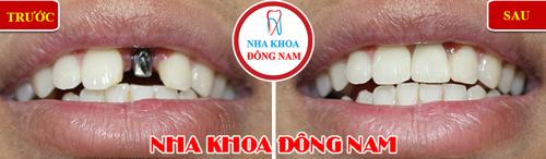 Bị mất răng cửa nên trồng răng loại nào? - Ảnh 2.