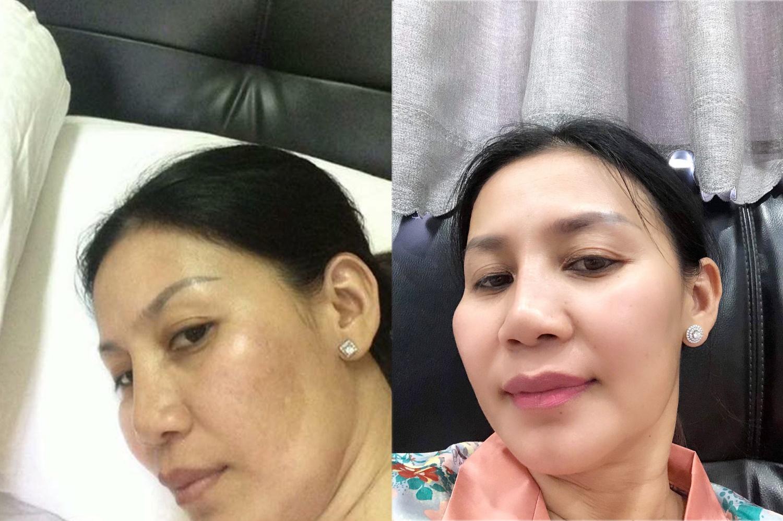 Cho Nami – Bí kíp giải cứu làn da tổn thương hiệu quả không chỉ cho chị em phụ nữ - Ảnh 1.