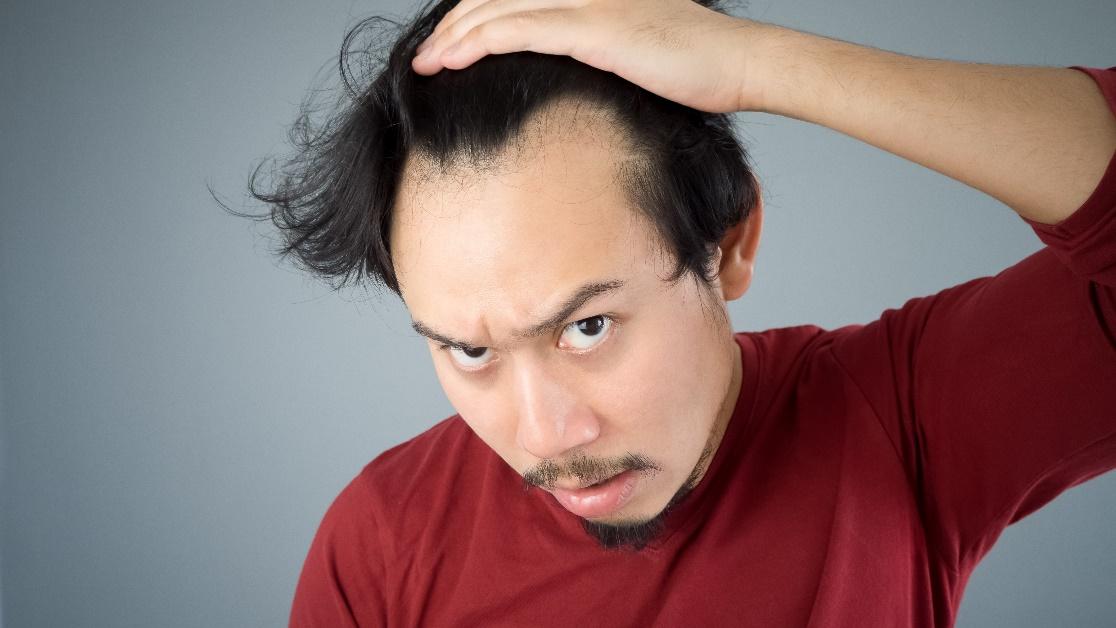 Rụng tóc, hói đầu phải đâu là chuyện nhỏ! - Ảnh 2.