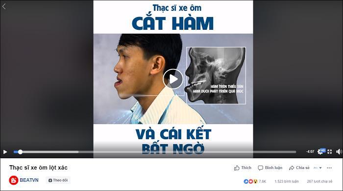Ca sĩ Phạm Quỳnh Anh bất ngờ trước nhan sắc mới của thạc sĩ xe ôm Duy Phương - Ảnh 4.