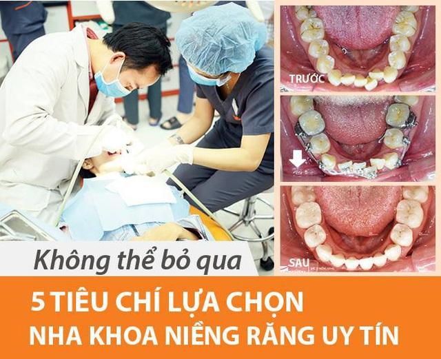 Địa chỉ niềng răng uy tín: 5 tiêu chí chọn nha khoa bạn nên biết - Ảnh 1.