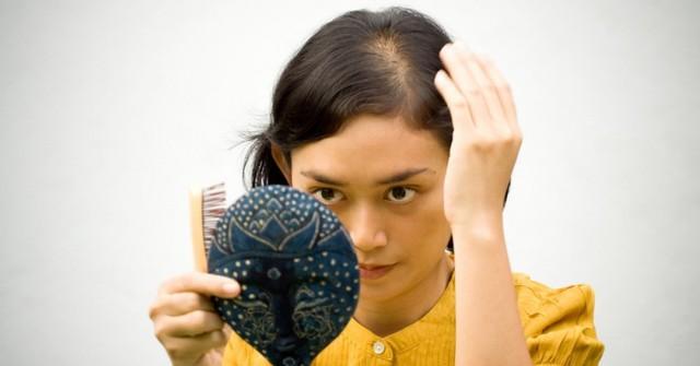 Những bí kíp đơn giản giúp mái tóc chắc khỏe, nhanh chóng thoát khỏi chứng rụng tóc nhiều - Ảnh 1.