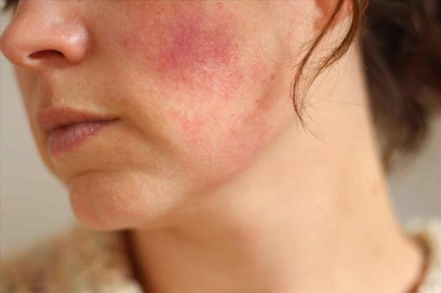 Những sai lầm thường gặp khiến da nhiễm Corticoid trở nên tồi tệ hơn - Ảnh 1.