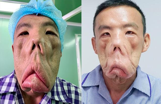 Giải mã 23.000 Gen của anh Mến mặt xệ, bác sĩ Tú Dung quyết tìm nguyên nhân bệnh lạ - Ảnh 2.
