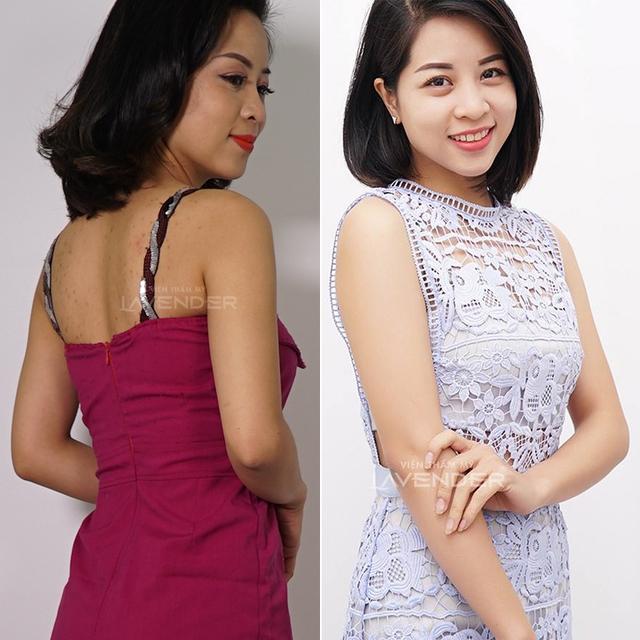 """Bật mí bí quyết trắng da từ hoa xuyên tuyết """"mê hoặc"""" hot girl Việt - Ảnh 8."""