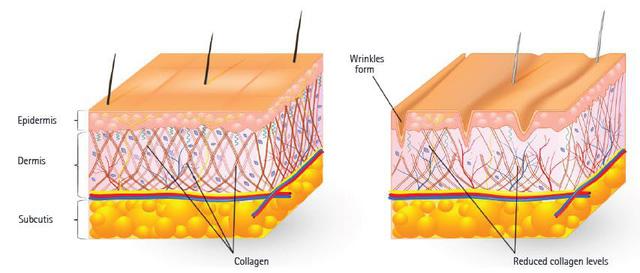 Diện tích nếp nhăn giảm được càng nhiều càng chứng tỏ hiệu quả của loại collagen được kiểm nghiệm.