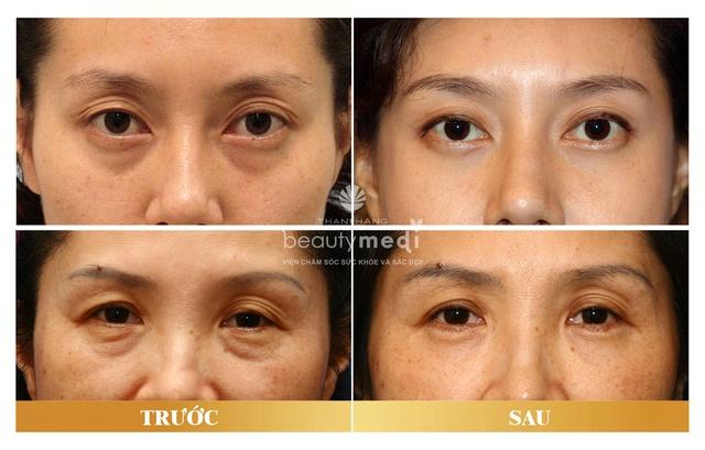 Một số hình ảnh trước và sau của khách hàng sau khi thực hiện phẫu thuật cắt bọng mỡ mắt.