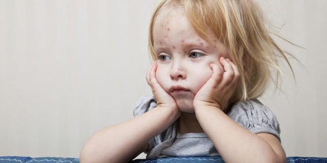 Bệnh sởi có xu hướng tăng: Làm sao để phòng ngừa cho trẻ? - Ảnh 1.