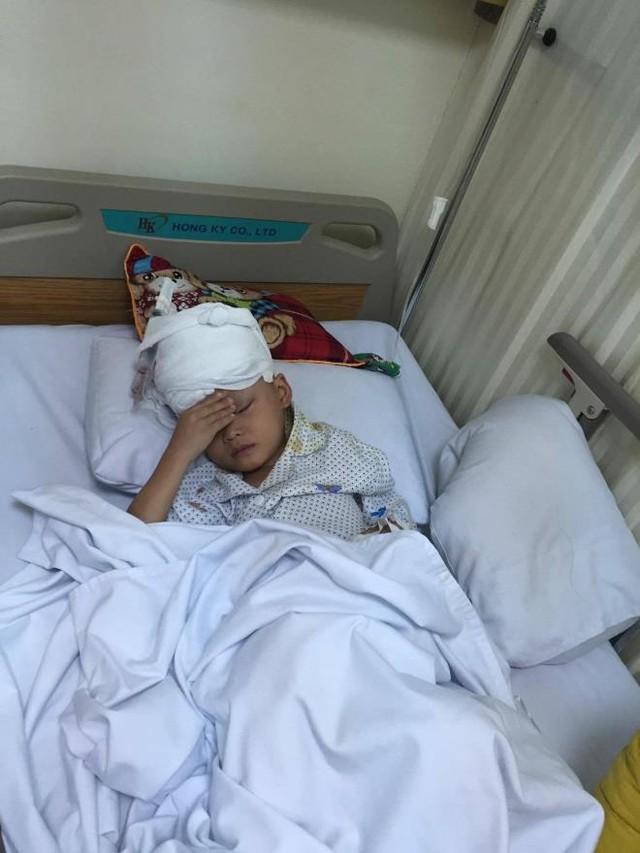 Bệnh viện Hà Thành phẫu thuật miễn phí cho bé bị u hắc tố bẩm sinh diện rộng - Ảnh 3.