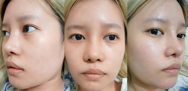 Bác sĩ Lê Trần Duy chia sẻ sự thật về phương pháp nâng mũi bọc sụn - Ảnh 1.