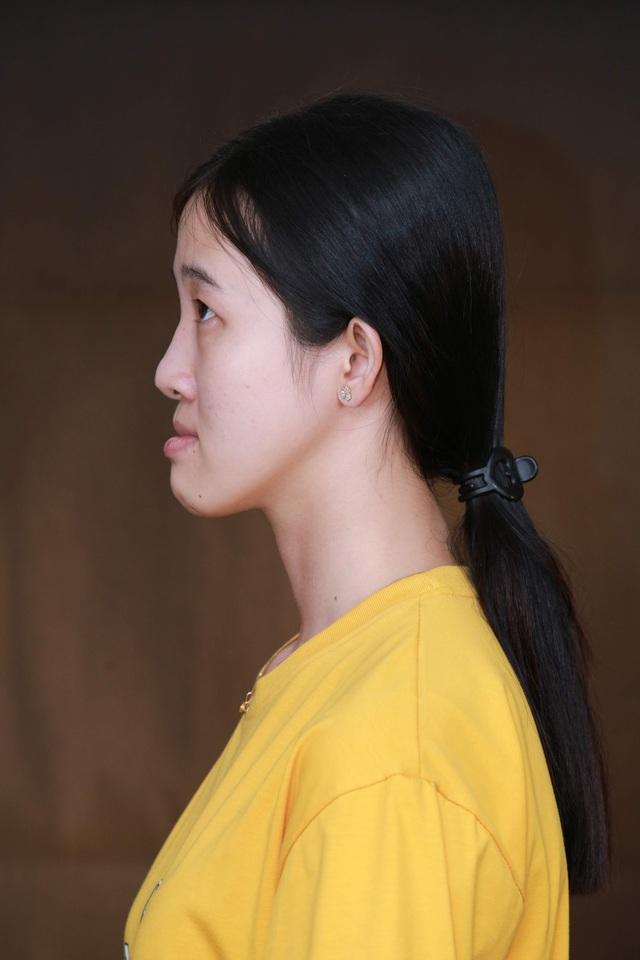 Sau 25 năm chung sống với mặt lưỡi cày, cô gái đập đi xây lại với nhan sắc vạn người mê - Ảnh 1.