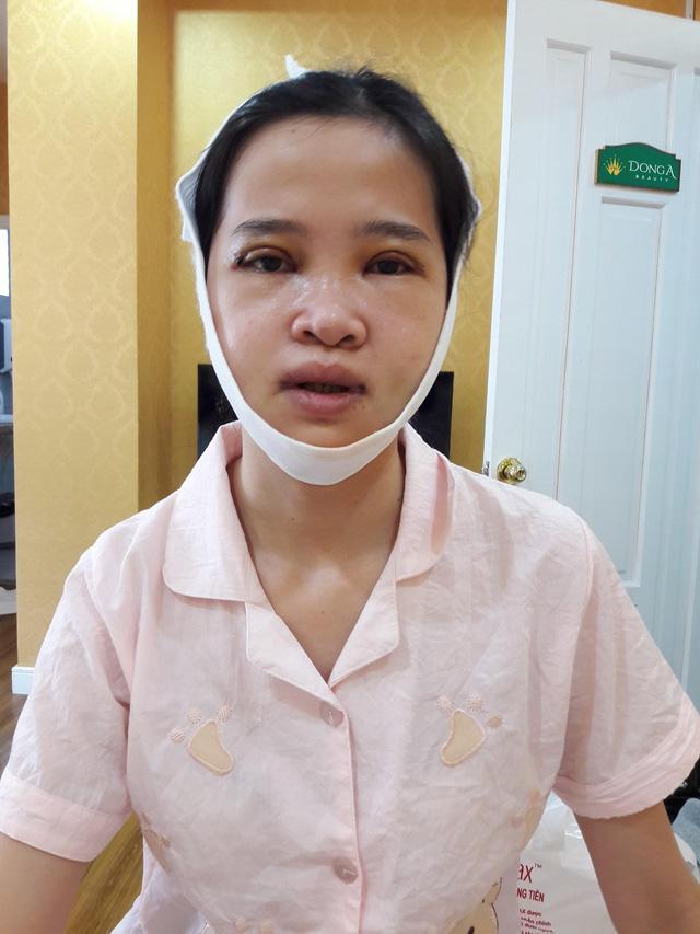 Sau 25 năm chung sống với mặt lưỡi cày, cô gái đập đi xây lại với nhan sắc vạn người mê - Ảnh 3.