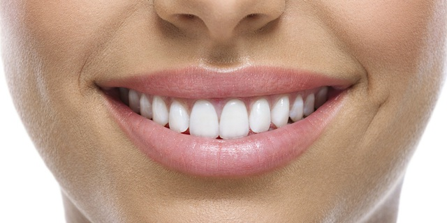 Một số lưu ý cần tìm hiểu trước khi bọc răng sứ - Ảnh 1.