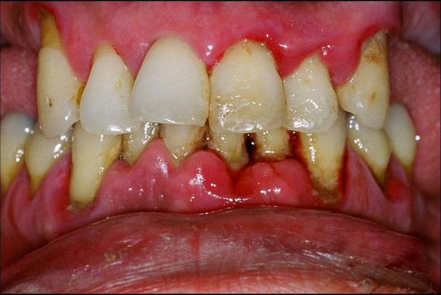 Một số lưu ý cần tìm hiểu trước khi bọc răng sứ - Ảnh 3.
