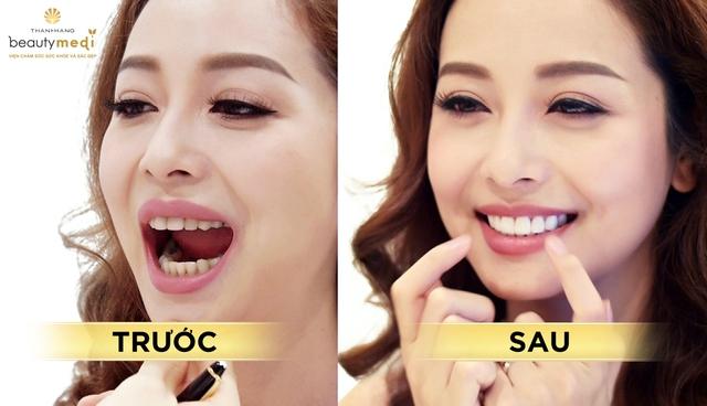 Nhìn lại hành trình thay đổi nhan sắc của hoa hậu Jennifer Phạm - Ảnh 5.