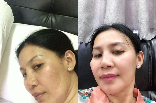 Cho Nami – Bí kíp giải cứu làn da tổn thương hiệu quả không chỉ cho chị em phụ nữ - ảnh 1
