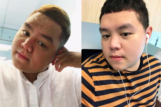 Cho Nami – Bí kíp giải cứu làn da tổn thương hiệu quả không chỉ cho chị em phụ nữ - ảnh 2