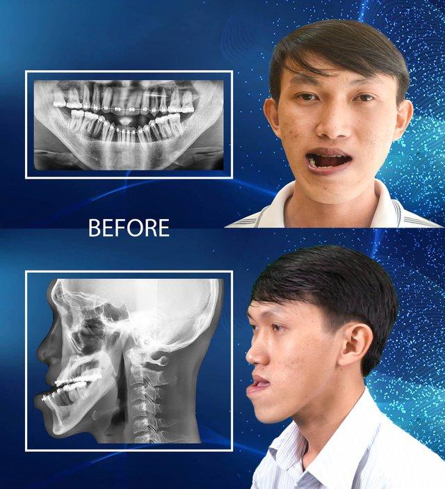 Thạc sĩ xe ôm liều mình cắt 2 hàm để trở thành người bình thường - ảnh 1