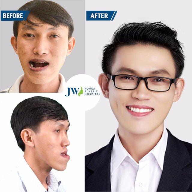Thạc sĩ xe ôm liều mình cắt 2 hàm để trở thành người bình thường - ảnh 5