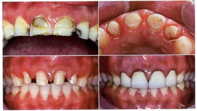 Tác hại khi bọc răng sứ không đúng chỉ định y khoa - Ảnh 1.