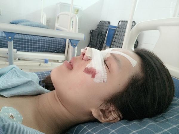 Ngỡ ngàng nhan sắc của cô gái chi 550 triệu đồng phẫu thuật thẩm mỹ 2