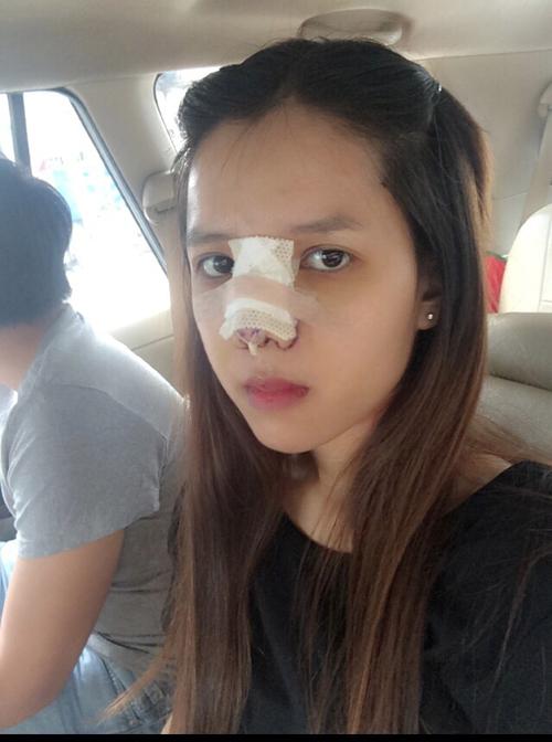 Ngỡ ngàng nhan sắc của cô gái chi 550 triệu đồng phẫu thuật thẩm mỹ 4