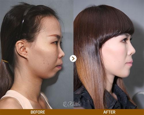 6 chiếc mũi của sao Hàn được nhiều người muốn phẫu thuật giống nhất - Ảnh 7.