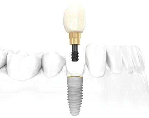 Tác dụng của phương pháp cấy ghép Implant với răng đã mất - Ảnh 1.