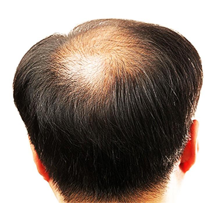 Tin vui cho các chàng bị hói đầu, mẹo này giúp tóc mọc nhanh lại chẳng lo tác dụng phụ - Ảnh 2.