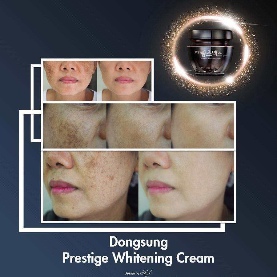 Chưa 30 mà đã có nám chi chít, thử ngay Dongsung Presitege Whitening Cream để thấy sự khác biệt - Ảnh 3.