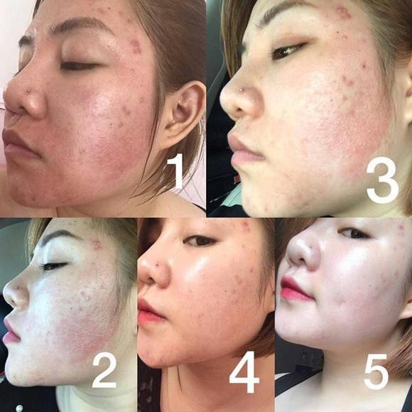 Quá trình ngăn ngừa mụn và phục hồi làn da hư tổn của serum Kosxu - Ảnh 5.