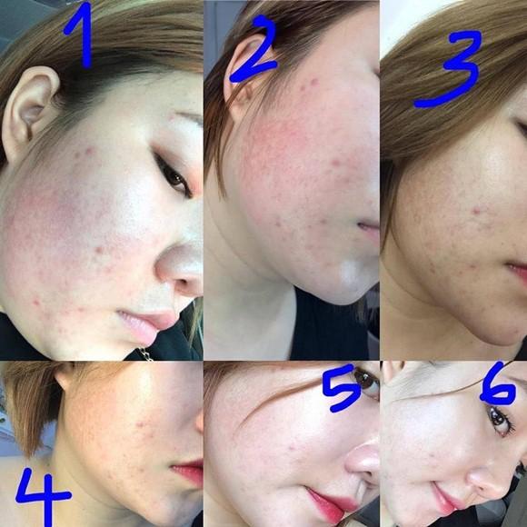 Quá trình ngăn ngừa mụn và phục hồi làn da hư tổn của serum Kosxu - Ảnh 6.