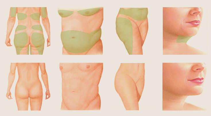 Hút mỡ: Phương pháp giảm béo nhanh, hiệu quả và những lưu ý về vấn đề an toàn - Ảnh 2.