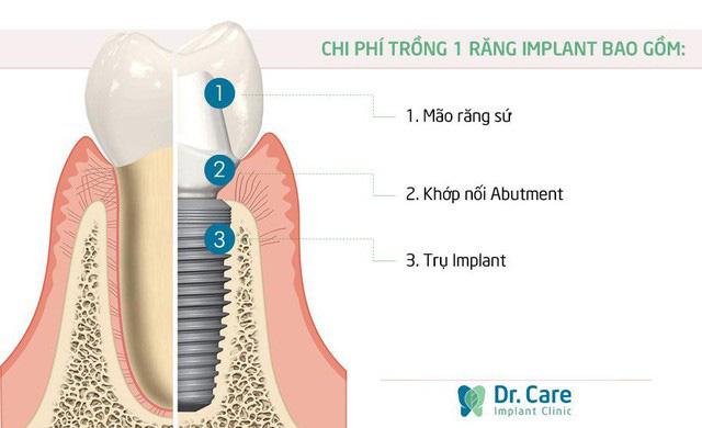 Lý giải sự thật về chi phí trồng răng Implant hiện nay - Ảnh 3.