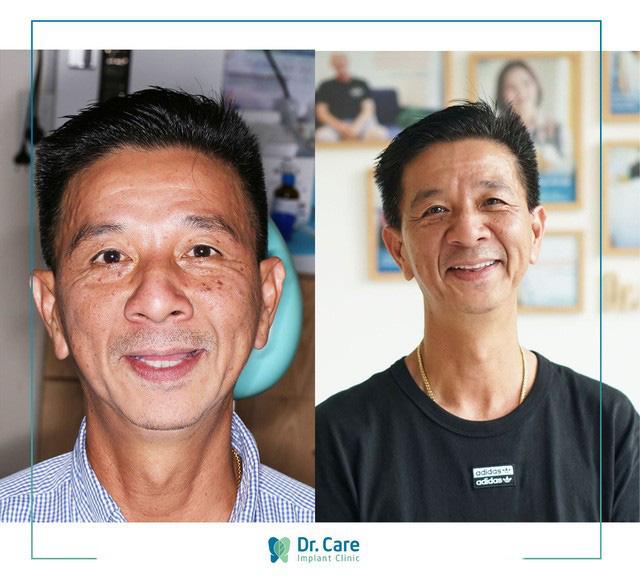Lý giải sự thật về chi phí trồng răng Implant hiện nay - Ảnh 4.